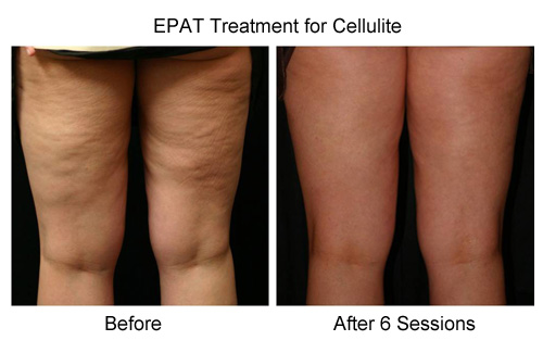 EPAT Treatment for Cellulite