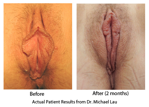 Labiaplasty - Hood Reduction