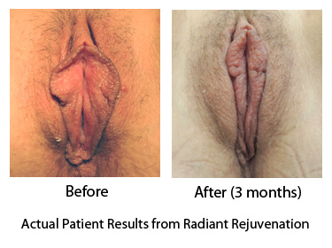 Labiaplasty and Hood Reduction