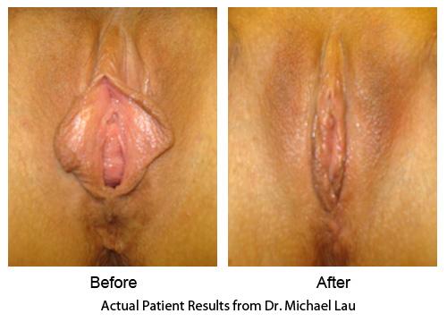 Vaginal Rejuvenation - for Vaginal Laxity and Loose Vaginal Opening: http://www.radiantrejuvenation.com/pelvic-plastic-surgery.html