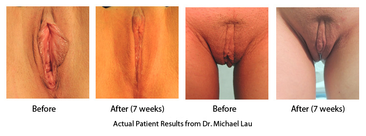 Vaginal Rejuvenation and Labiaplasty