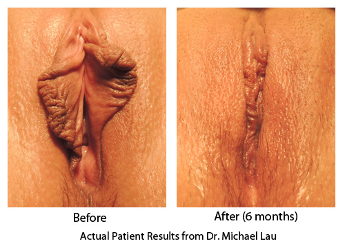 Vaginal Rejuvenation - Labiaplasty